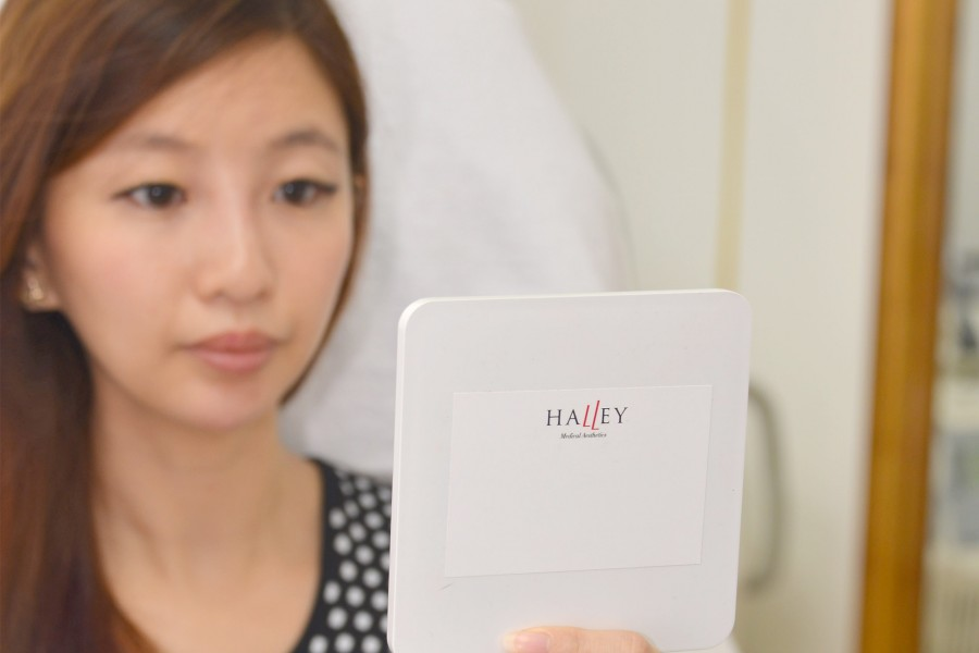 Fillers with Halley Medical Aesthetics